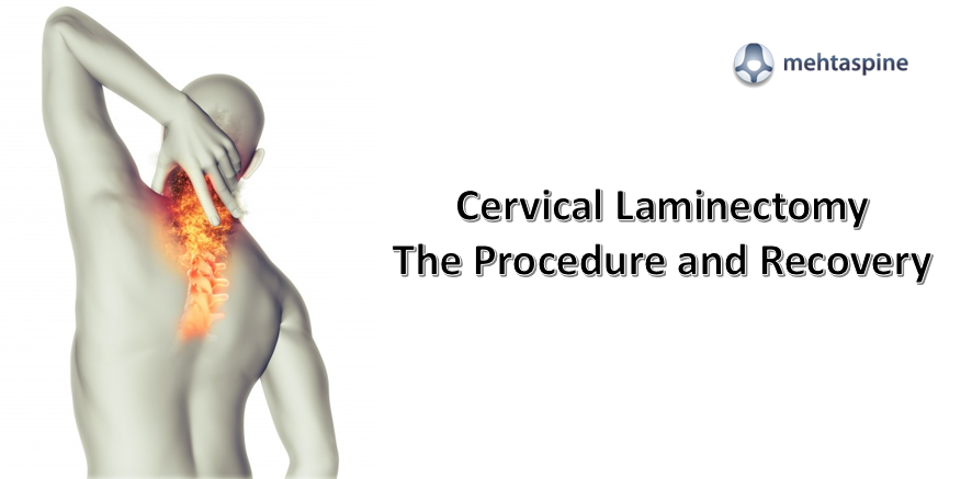 Cervical Laminectomy treatment - Mehtaspine