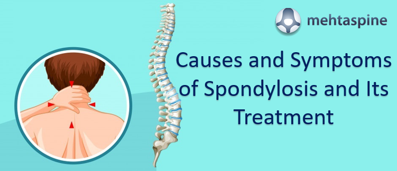 Spondylosis Causes and Treatment