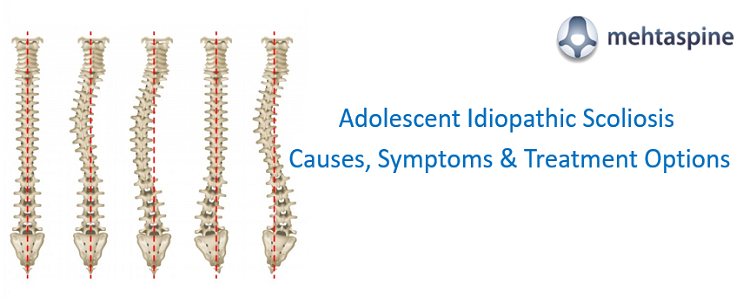 Adolescent Idiopathic Scoliosis treatment UK
