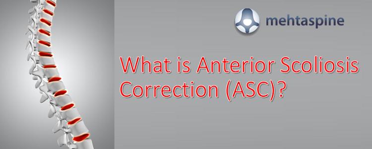 Anterior Scoliosis Correction Treatment UK