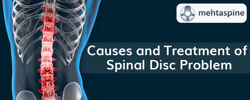 Treatment for Spinal Disc Problems | spinal specialist doctor in uk