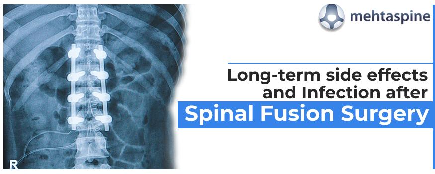 Lumbar Spinal Fusion Surgeon Edgbaston
