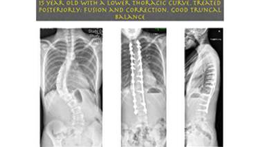Early onset Scoliosis- Jwalant Mehta
